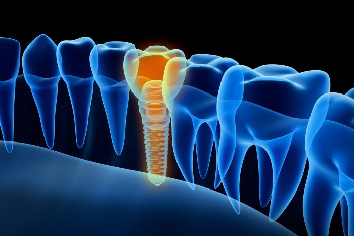 Benefits Dental Implants