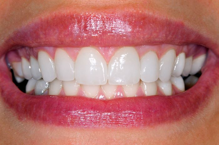 Benefits Veneers